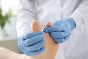 Krioterapia w leczeniu zmian skórnych